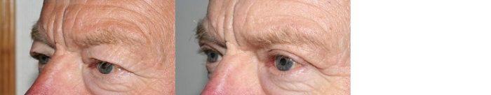 Ögonlocksoperation 5