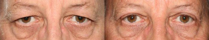 operera hängande ögonlock